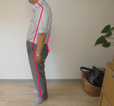 恵比寿の整体師、歪み。腰痛、肩こり、骨盤の歪み改善