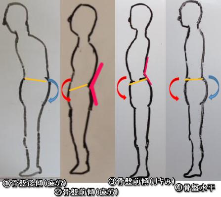 骨盤の傾斜姿勢