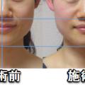 肩こりと小顔の関係性。軽く手を添えて肩こりがスッキリすると、かなりの美容効果