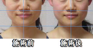 清水紗耶香さん施術の変化2