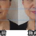 気の整体で肩こりがスッキリすると、首のしわも、顔が20歳若返る。