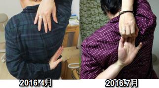 160716mh肩の痛み4