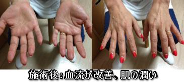 160707mc血流改善 肌の潤い