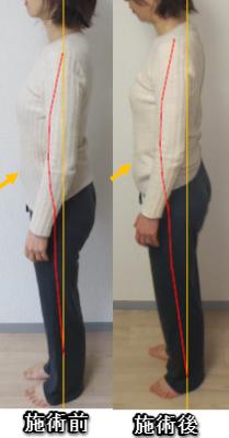 160707ms肩こり股関節痛4