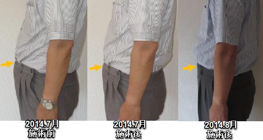 160716ny肩こり、腰痛4
