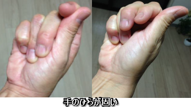 手のひら柔らかさ1