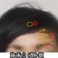 肩こりは顔が浮腫みます。目、眉毛に気功の手で顔が激変と評判とのこと。