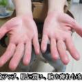 慢性の肩こりから腕の痺れ。血流改善で症状も大幅に改善。