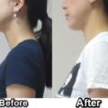 女性の不調、肩こり、冷え、生理不順。首の位置に問題あり。
