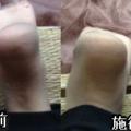 肩こり疲れは足の長さの左右差。恵比寿の気功の手セラピーがあります。