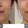 顎のラインがほっそり、顔の若返り、気功の手セラピーセミナー後記。