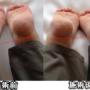 足の長さの違いと仙腸関節の痛み。強張りに触れるとサッと血が流れる。