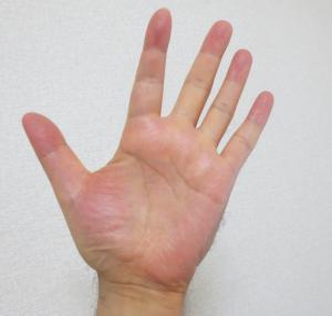 マナブ整体院の特徴、気功の手。押さない、揉まない、軽く手を添えるだけです。