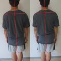 慢性の肩こりは重心の狂い、気功足裏三点立ちが効く