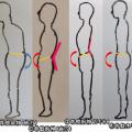 女性の肩こり、腰痛姿勢。胸張りとポッコリお腹