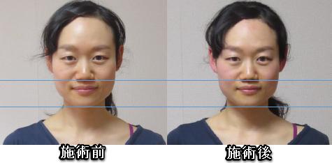 清水紗耶香さん施術の変化1