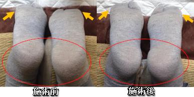 160804ty足の左右差骨盤