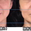 気功の手セラピー顔のセルフケア。顔の浮腫みがなくなります。