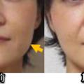 顔の老化は鼻から下が弛むこと。