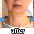 気功の効果!顔が変わる!肌にはり!頬のリフトアップ!東洋の神秘の美容法